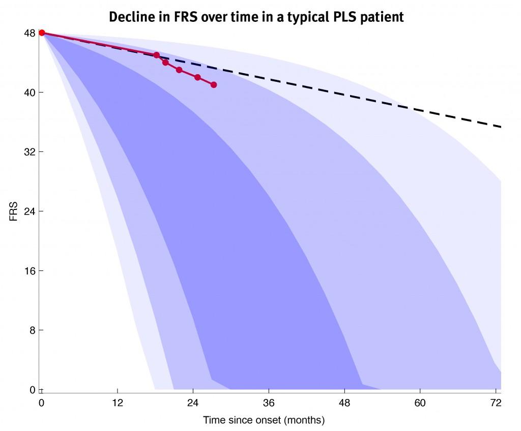 pls-patient-on-als-curves_ls2