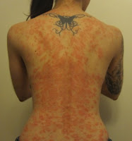 What A Psoriasis Outbreak Looks Like for Lissa