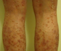A Photo of Lissa's Legs During an Psoriasis Outbreak