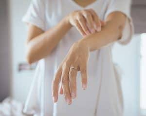 psoriasis on arm